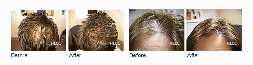 Laser hair loss prevention and treatment therapy