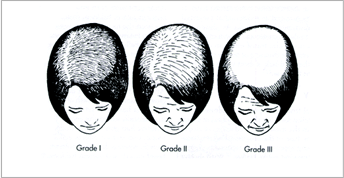 Ludwig Scale of female hair loss.